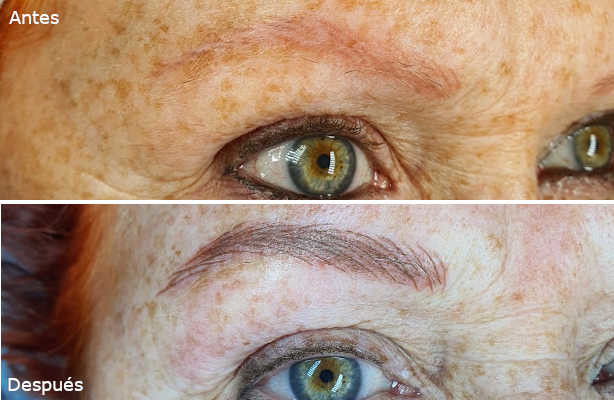 micropigmentacion-vista-antes-despues-3