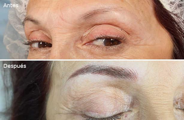 micropigmentacion-vista-antes-despues